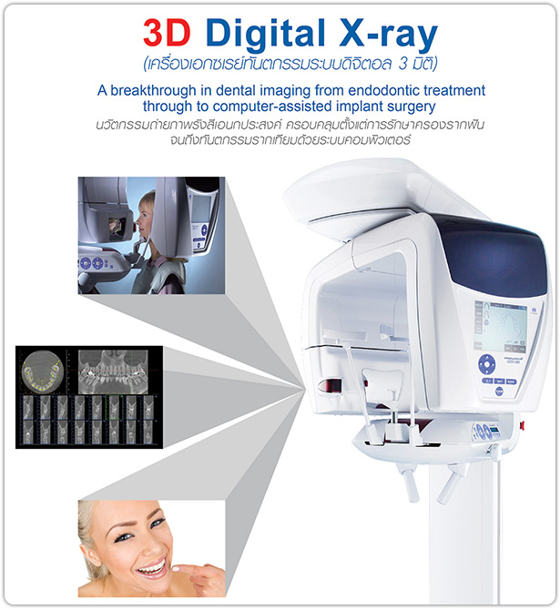 3D Dental X-Ray