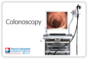 The Colonoscopy