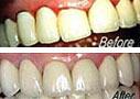 Dental Crown adn Dental Bridge