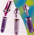 Dental Implant / Tooth Implant