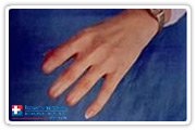 Fingers Prosthesis