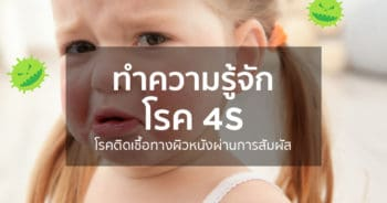โรค 4S (Staphylococcal Scalded Skin Syndrome : SSSS)