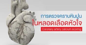 Coronary artery calcium scoring