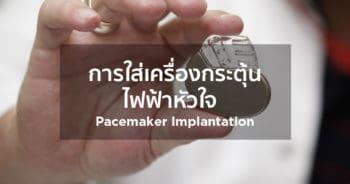 การใส่เครื่องกระตุ้นไฟฟ้าหัวใจ Pacemaker Implantation