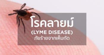โรคลายม์ (Lyme disease) ภัยร้ายจากเห็บกัด
