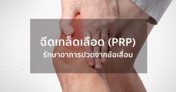 การรักษาโรคข้อเข่าเสื่อมโดยการฉีดเกล็ดเลือด