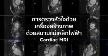 การตรวจหัวใจด้วยเครื่องสร้างภาพด้วยสนามแม่เหล็กไฟฟ้า (Cardiac MRI)