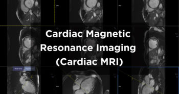 Cardiac Magnetic Resonance Imaging (MRI) scan