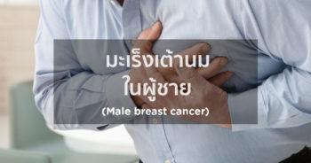 มะเร็งเต้านมในผู้ชาย