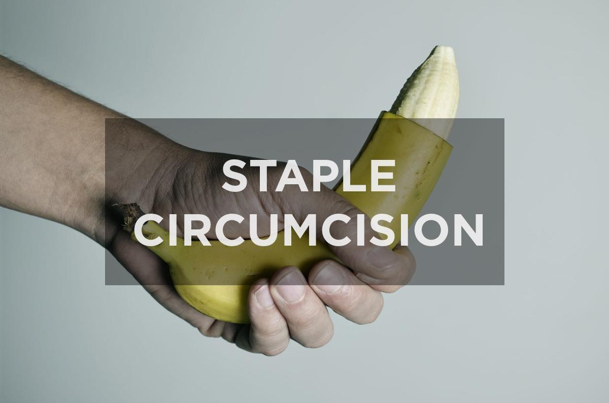 What is Staple Circumcision?