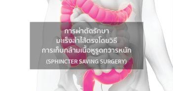การผ่าตัดรักษามะเร็งลำไส้ตรงโดยวิธีการเก็บกล้ามเนื้อหูรูดทวารหนัก (Sphincter Saving Surgery)